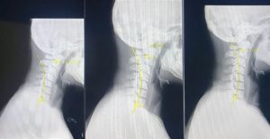 """Straightening out a reversed cervical curve otherwise known as """"text neck"""""""